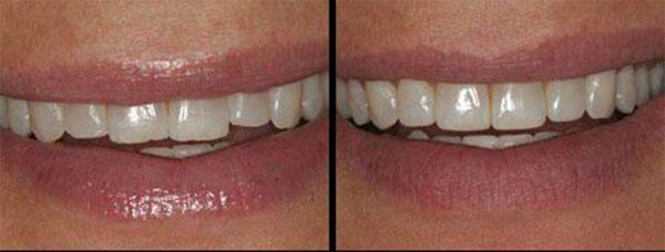 برد الأسنان