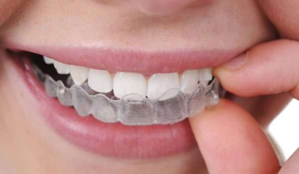 طب تجميل الاسنان