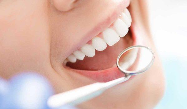 عملية-تبييض-الاسنان1