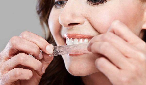 عملية-تبييض-الاسنان2