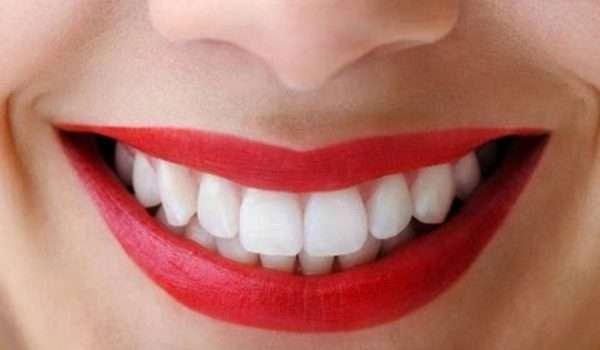 الاسنان