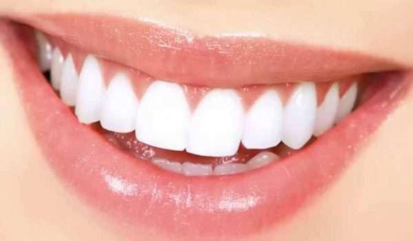 اشعة الاسنان