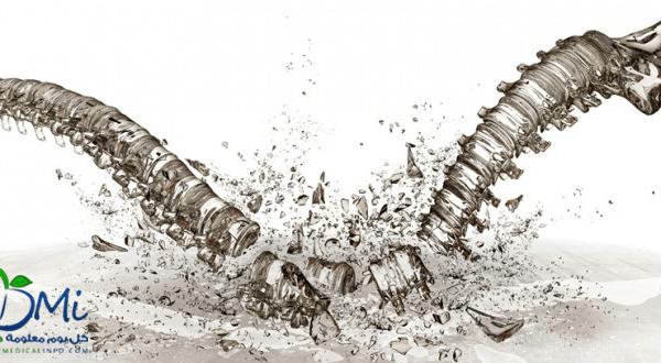 9 أسباب لإصابة الرجال بوهن العظام