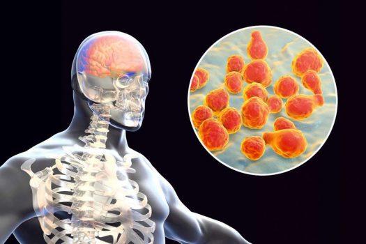 التهاب السحايا الفطري