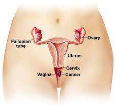 سرطان المهبل