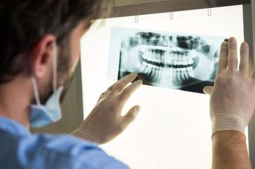 اصابات الاسنان