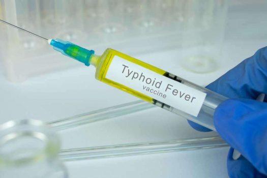 حمى التيفود