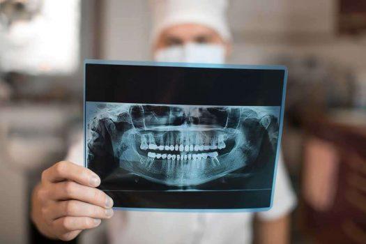 خراج الأسنان