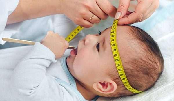 e02633fc0 صغر الرأس Microcephaly - كل يوم معلومة طبية