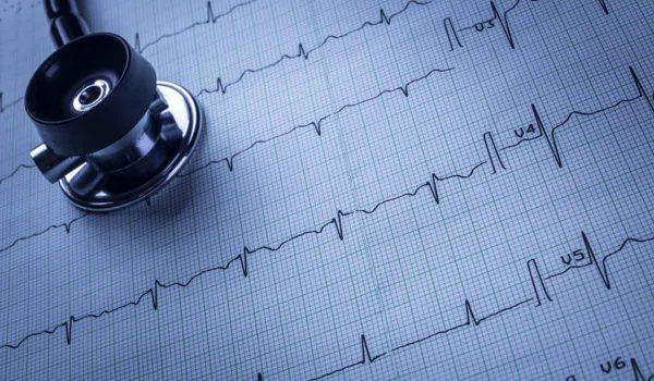 رسم القلب أو تخطيط القلب الكهربائي