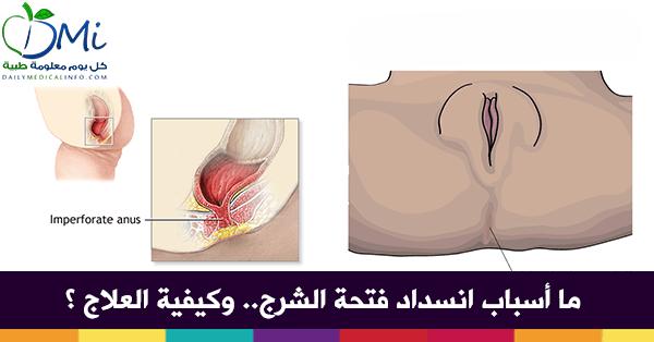 871db0dca44c3 توسيع فتحة الشرج عند الأطفال حديثي الولادة - كل يوم معلومة طبية