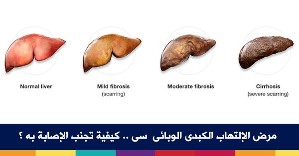 ما هو الإلتهاب الكبدى الوبائى؟