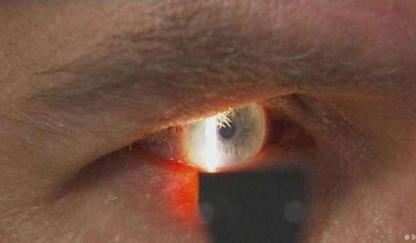 انفلونزا العيون