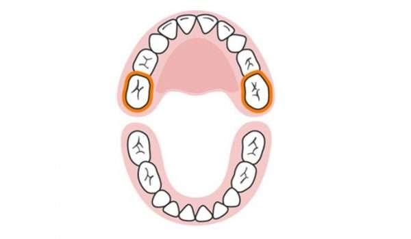 التسنين عند الاطفال الأسنان اللبنية الضرسان الخلفيان العلويان