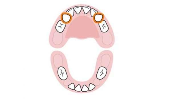 التسنين عند الاطفال الأسنان اللبنية النابان العلويان