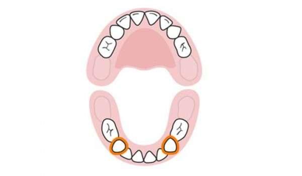 التسنين عند الاطفال الأسنان اللبنية النابان السفليان
