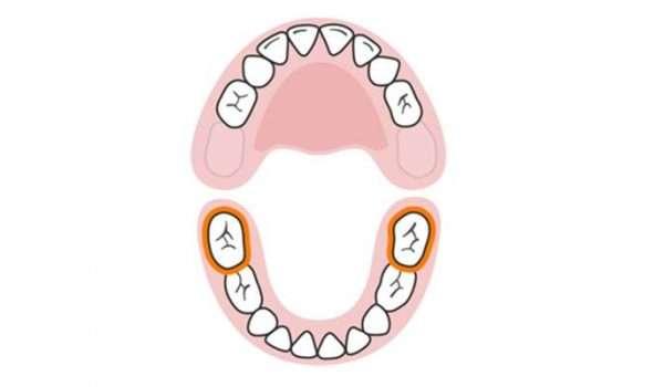 التسنين عند الاطفال الأسنان اللبنية الضرسان الخلفيان السفليان