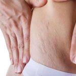 علامات تمدد الجلد