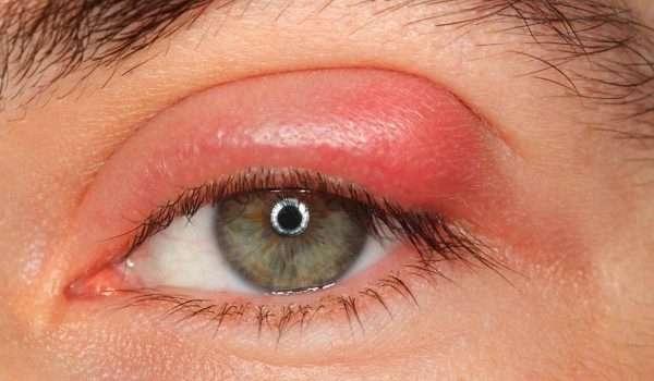 الكيس الدهني في العين