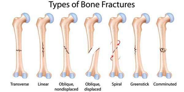 انواع كسور العظام
