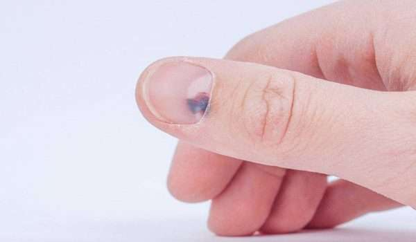 علاج احتباس الدم تحت الاظافر