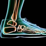 مرض هشاشة العظام