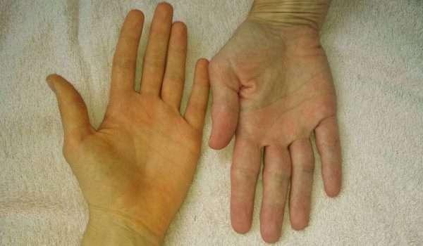 a6a66d08cda5c اسباب اصفرار اليدين ومتى يجب أن تستشير الطبيب ؟ - كل يوم معلومة طبية