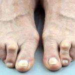 تشوهات اصابع القدم