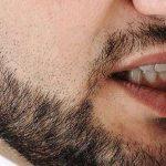 صحة الفم