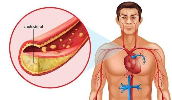 نسبة الكوليسترول