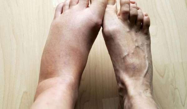 صحة القدمين