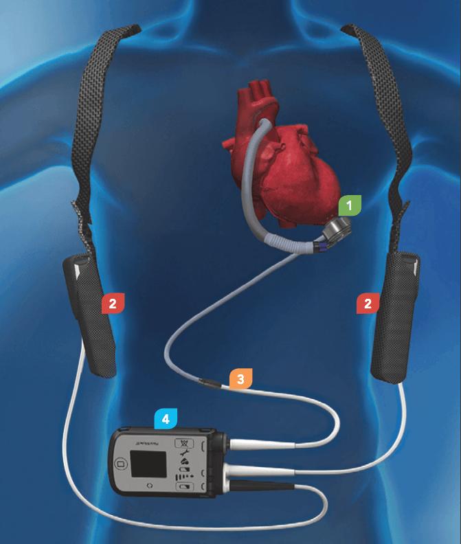 أصغر قلب صناعي