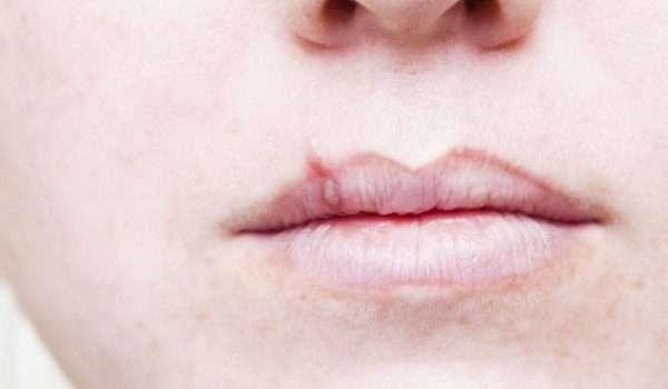 حبوب الفم