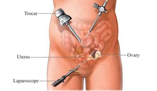 اسباب استئصال الرحم