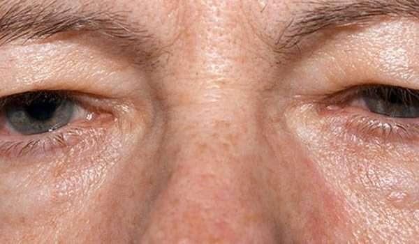 صحة العيون