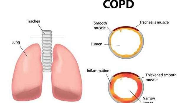 اسباب التنفس المختلفة؟ وكيف يمكن 9-5.jpg