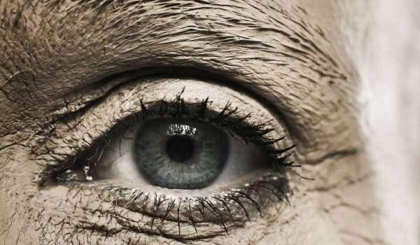 مرض العين