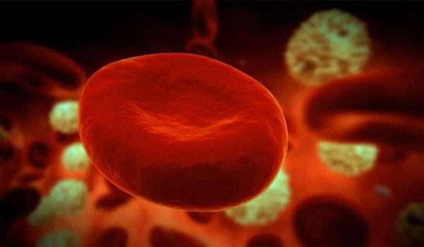 فقر الدم المنجلي