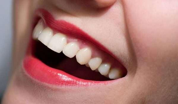 علاج اعوجاج الاسنان