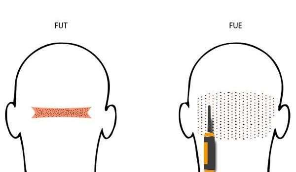 زراعة-الشعر-بالاقتطاف-والشريحة
