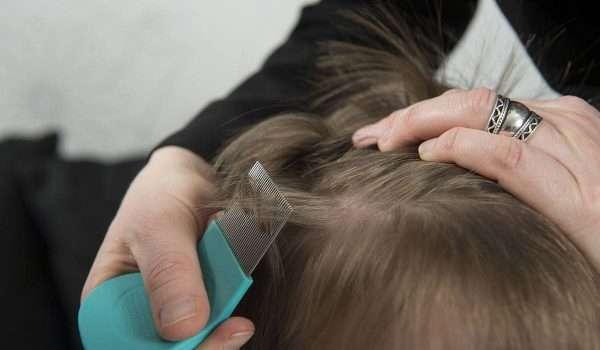القمل عند الاطفال وأعراضه وطرق حماية طفلك منه