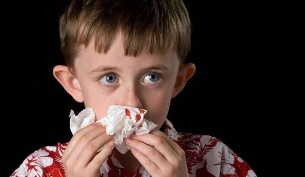 نزيف الانف عند الاطفال