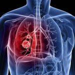 مرض سرطان الرئة