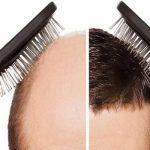 تقنية DHI لزراعة الشعر