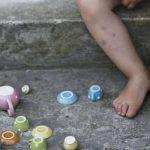 اعراض الجرب عند الاطفال