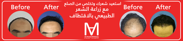جير الاسنان الاسود وكيف يمكن 2mq98Cu