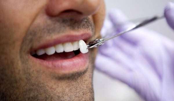 فينير الاسنان أو اسنان بورسلين