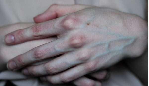 علاج بروز عروق اليدين