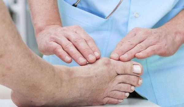 علاج بروز عظمة القدم