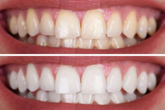 قشرة الأسنان قبل وبعد